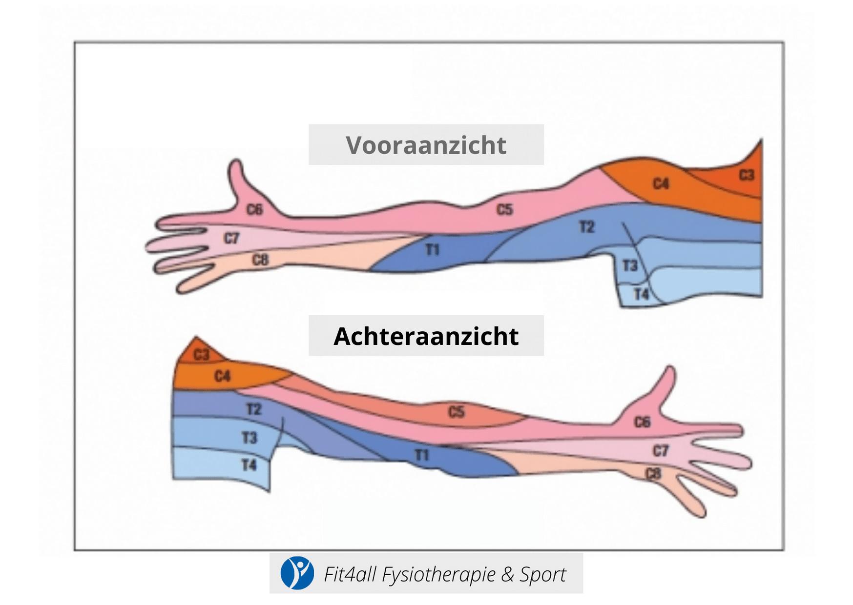 Uitstraling arm door Nekhernia