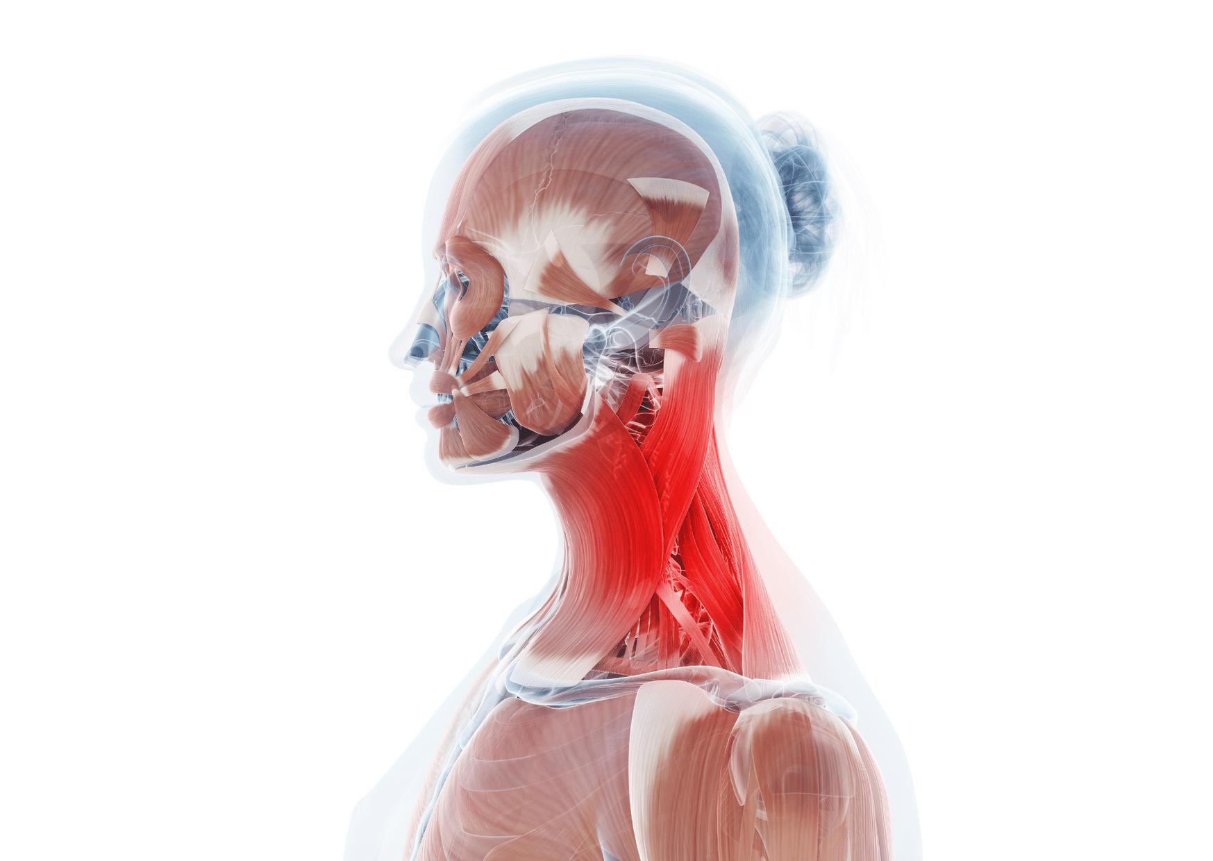 Chronische spanningshoofdpijn