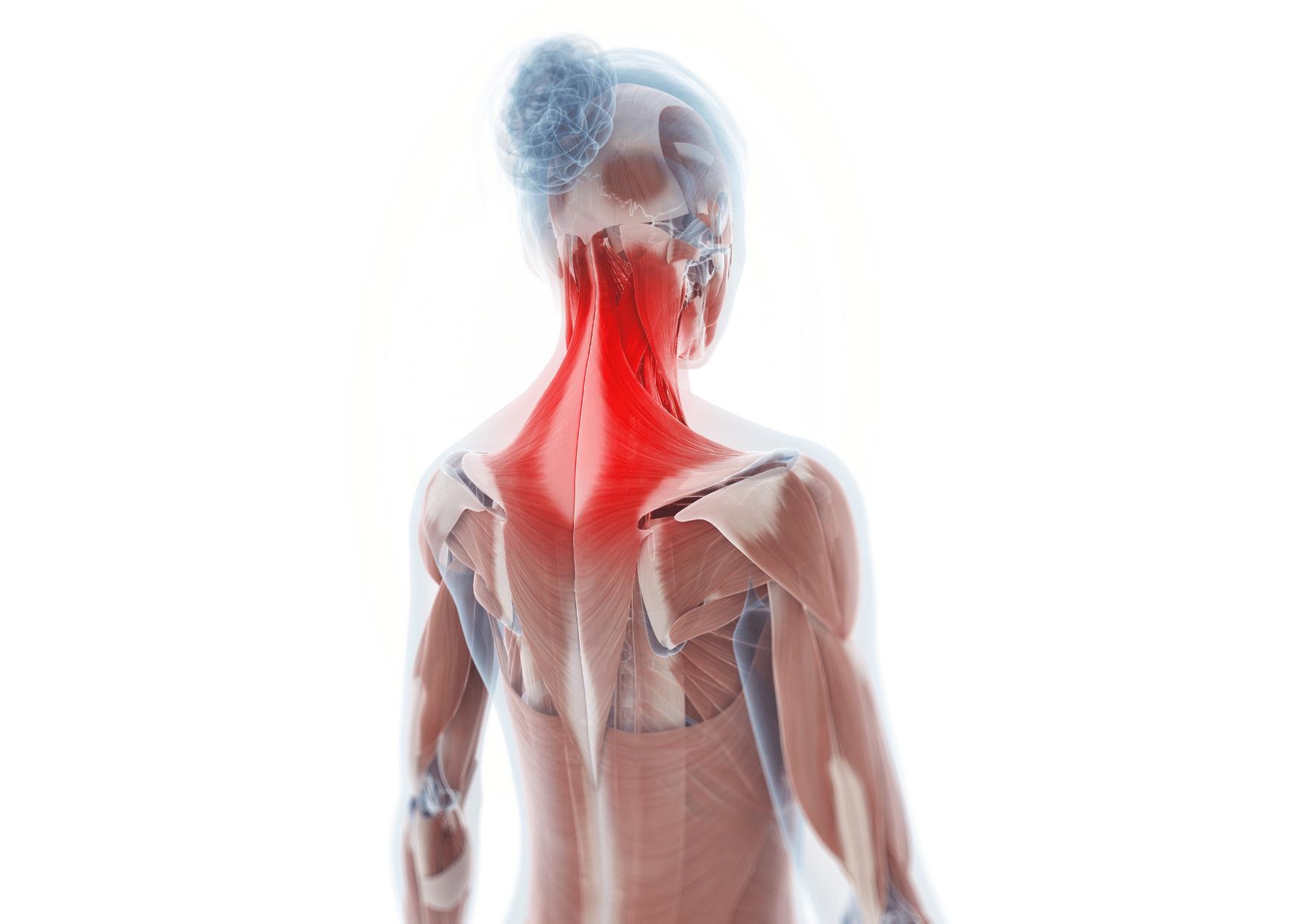 Stijve nek hoofdpijn